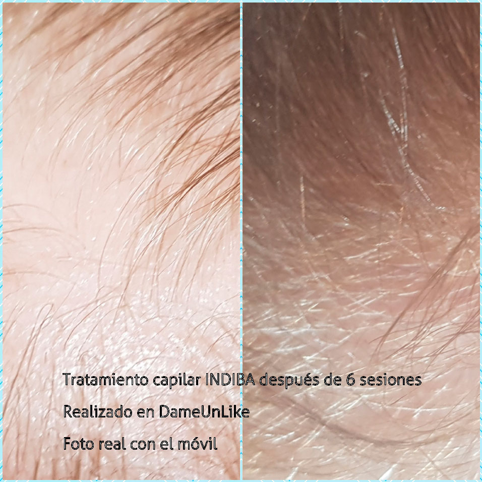 tratamiento-capilar-indiba-betanzos